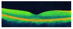 網膜のOCT画像